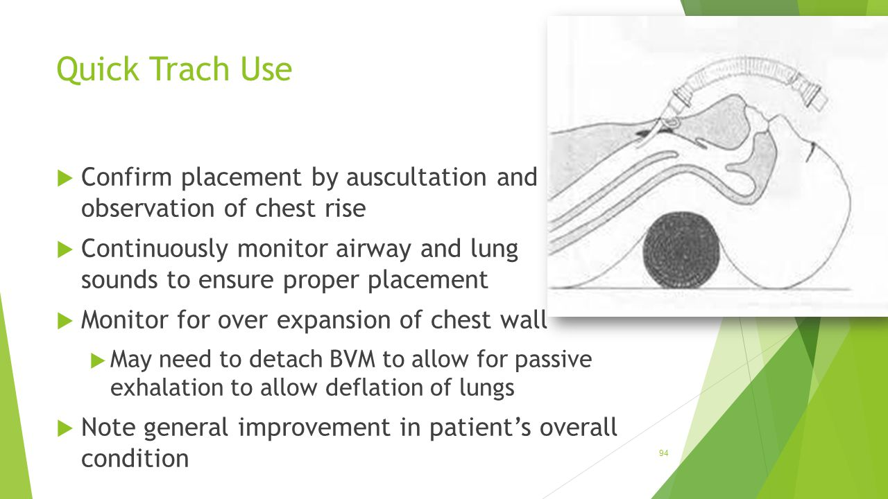 Quick Trach Use  Confirm placement by auscultation and observation of chest rise  Continuously monitor airway and lung sounds to ensure proper place