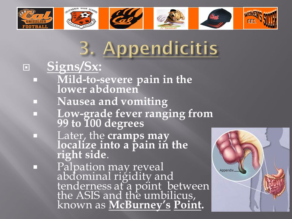  Signs/Sx:  Mild-to-severe pain in the lower abdomen  Nausea and vomiting  Low-grade fever ranging from 99 to 100 degrees  Later, the cramps may