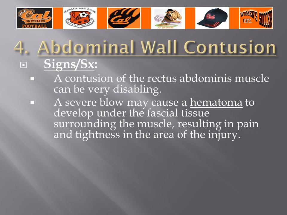  Signs/Sx:  A contusion of the rectus abdominis muscle can be very disabling.  A severe blow may cause a hematoma to develop under the fascial tiss