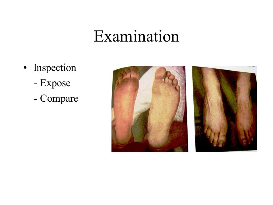 Examination Inspection - Expose - Compare