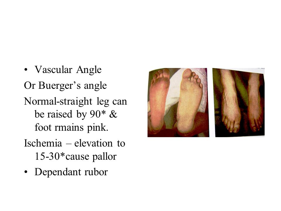 Vascular Angle Or Buerger's angle Normal-straight leg can be raised by 90* & foot rmains pink.