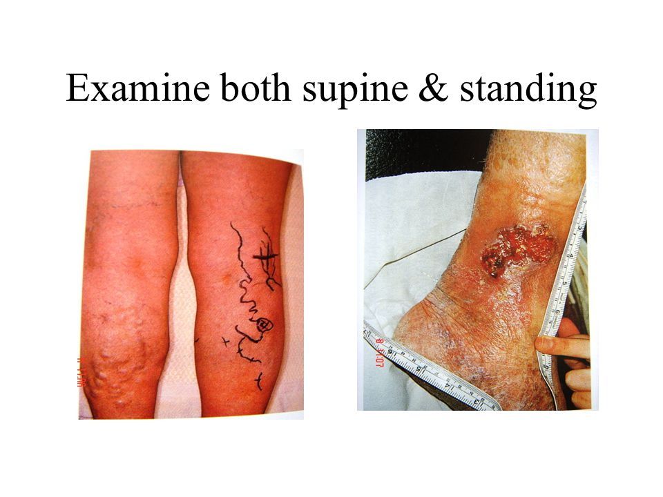 Examine both supine & standing