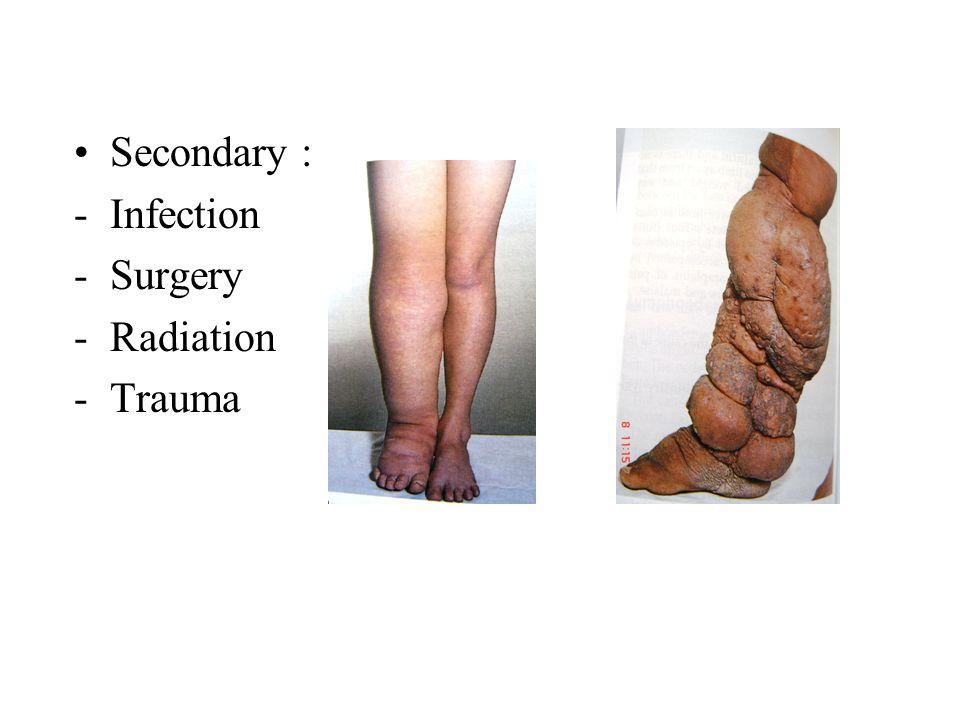 Secondary : -Infection -Surgery -Radiation -Trauma