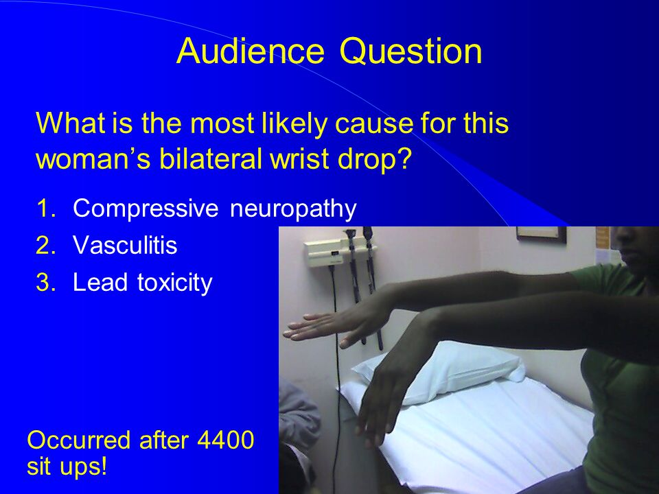 What is the most likely cause for this woman's bilateral wrist drop? Audience Question 1.Compressive neuropathy 2.Vasculitis 3.Lead toxicity Occurred