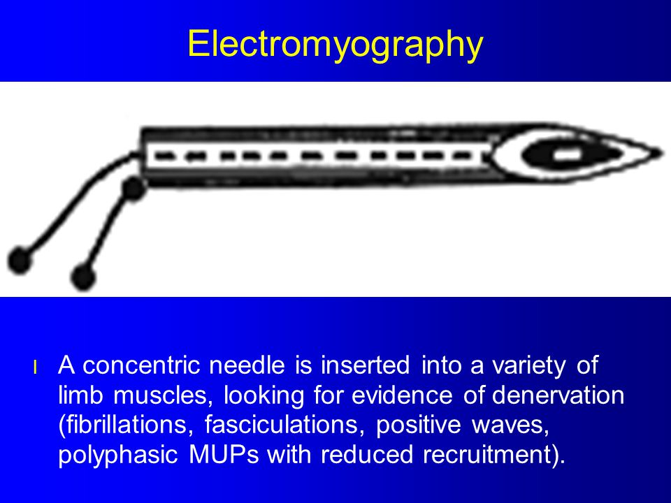 Electromyography l A concentric needle is inserted into a variety of limb muscles, looking for evidence of denervation (fibrillations, fasciculations,