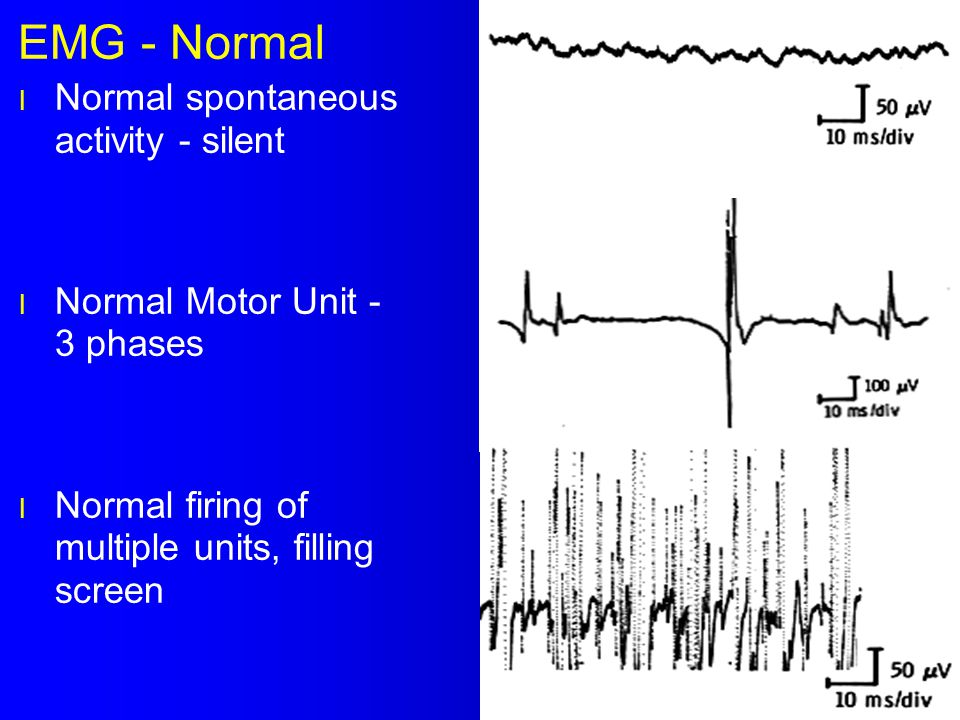 EMG - Normal l Normal spontaneous activity - silent l Normal Motor Unit - 3 phases l Normal firing of multiple units, filling screen