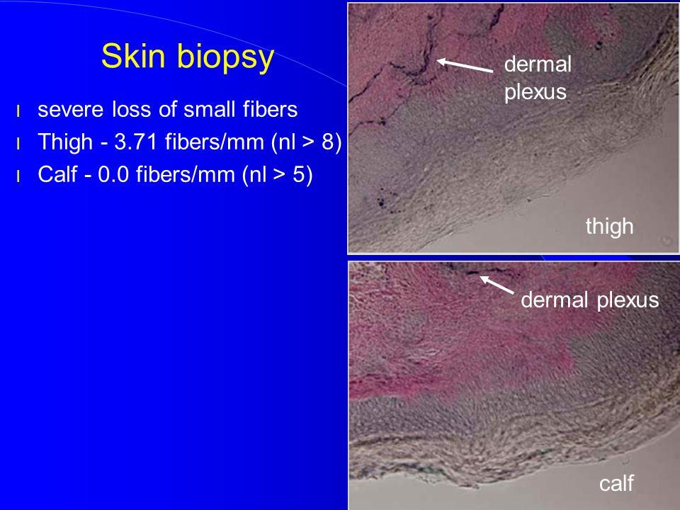 Skin biopsy l severe loss of small fibers l Thigh - 3.71 fibers/mm (nl > 8) l Calf - 0.0 fibers/mm (nl > 5) dermal plexus thigh calf dermal plexus