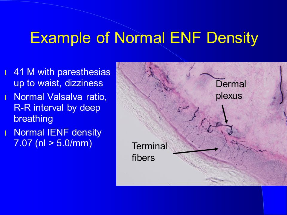 Example of Normal ENF Density l 41 M with paresthesias up to waist, dizziness l Normal Valsalva ratio, R-R interval by deep breathing l Normal IENF de