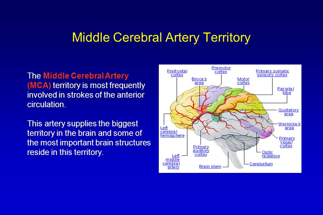 Middle Cerebral Artery Territory The Middle Cerebral Artery (MCA) territory is most frequently involved in strokes of the anterior circulation. This a