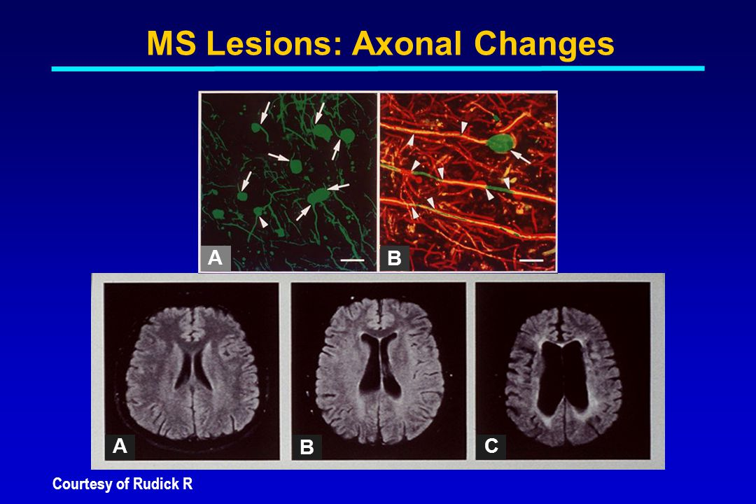 Courtesy of Rudick R MS Lesions: Axonal Changes A B A B C