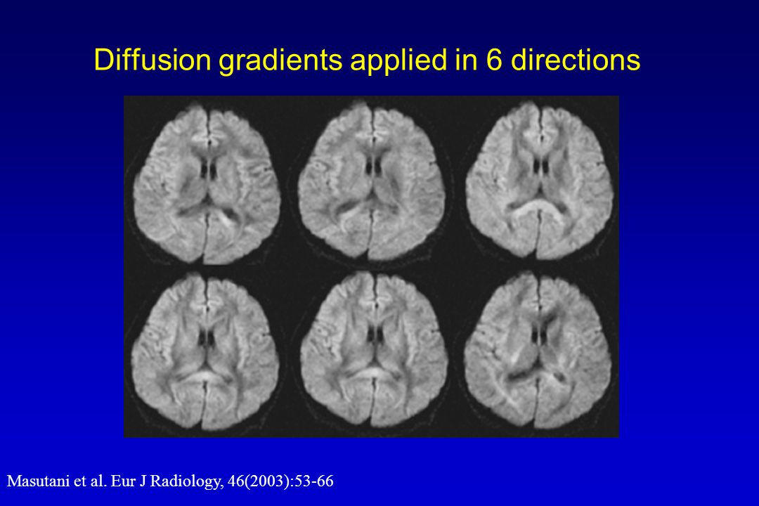 Diffusion gradients applied in 6 directions Masutani et al. Eur J Radiology, 46(2003):53-66