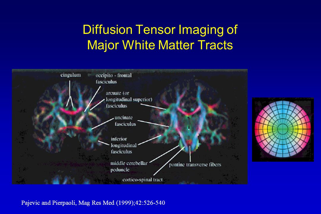 Diffusion Tensor Imaging of Major White Matter Tracts Pajevic and Pierpaoli, Mag Res Med (1999);42:526-540