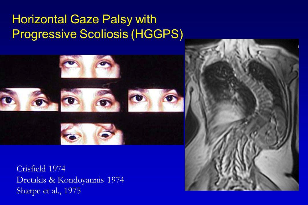 Horizontal Gaze Palsy with Progressive Scoliosis (HGGPS) Crisfield 1974 Dretakis & Kondoyannis 1974 Sharpe et al., 1975