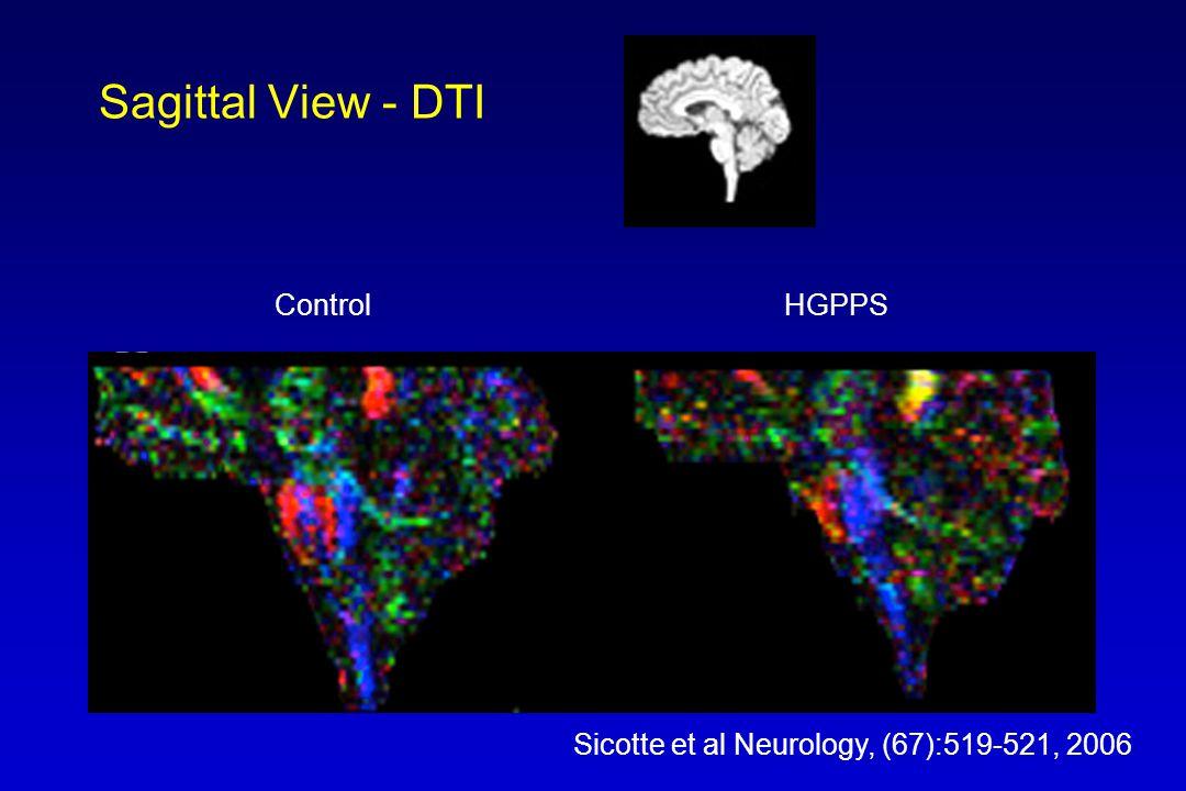 Sagittal View - DTI ControlHGPPS Sicotte et al Neurology, (67):519-521, 2006