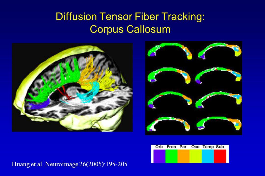 Diffusion Tensor Fiber Tracking: Corpus Callosum Huang et al. Neuroimage 26(2005):195-205