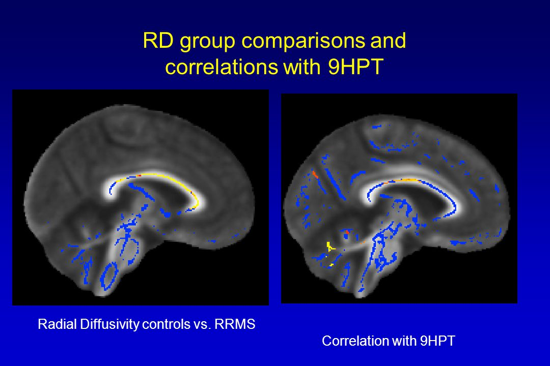 RD group comparisons and correlations with 9HPT Radial Diffusivity controls vs. RRMS Correlation with 9HPT