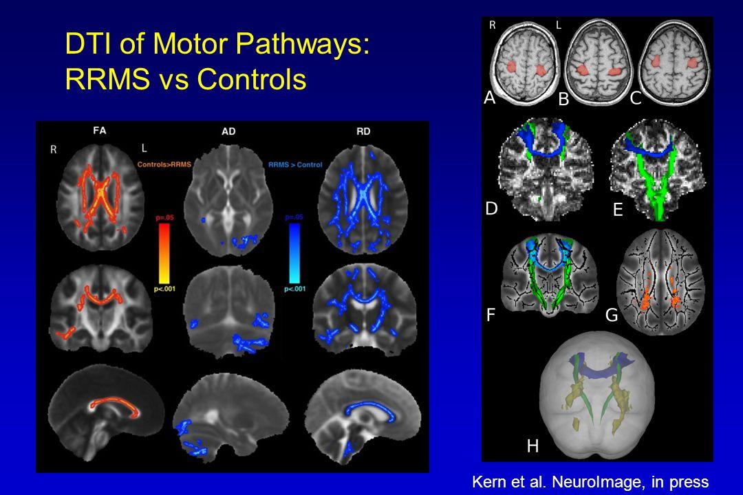 DTI of Motor Pathways: RRMS vs Controls Kern et al. NeuroImage, in press