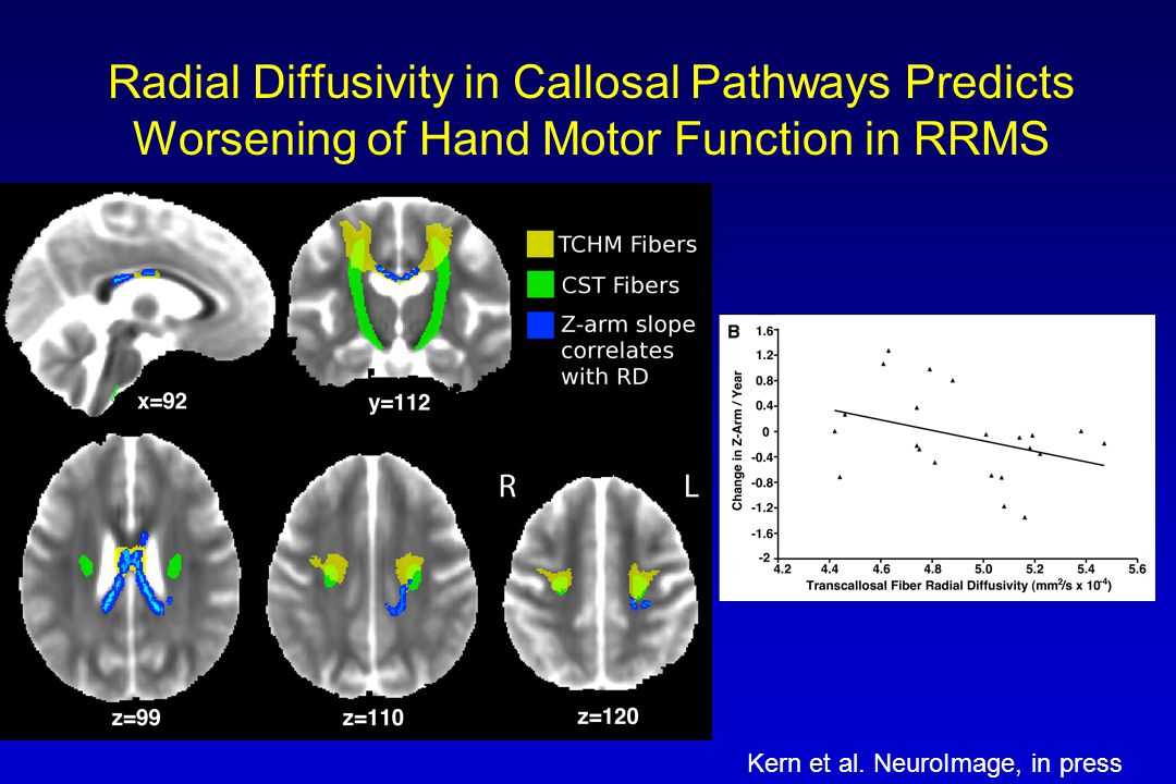 Radial Diffusivity in Callosal Pathways Predicts Worsening of Hand Motor Function in RRMS Kern et al. NeuroImage, in press