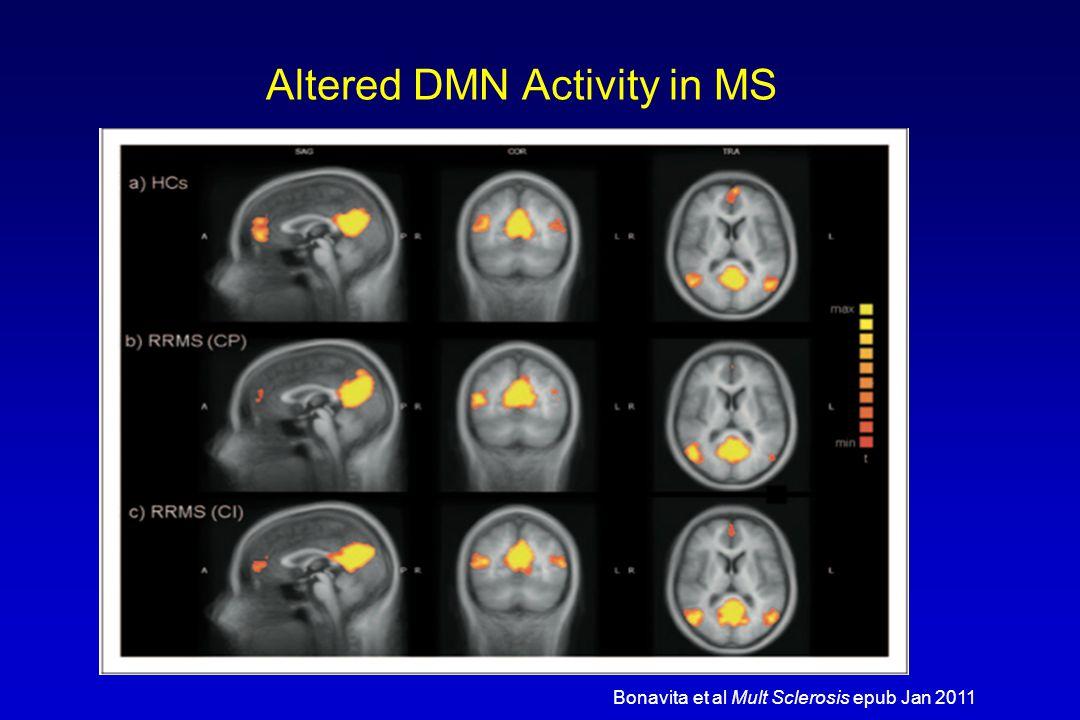 Altered DMN Activity in MS Bonavita et al Mult Sclerosis epub Jan 2011