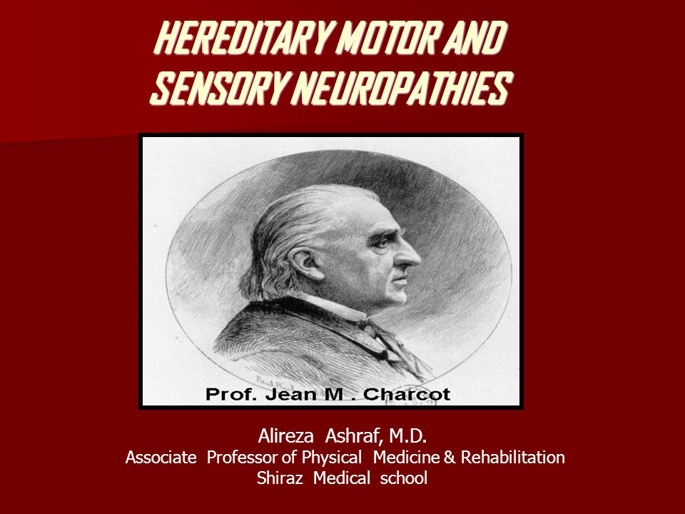 There is little correlation between the patients clinical symptoms and the degree to which nerve conductions are affected.