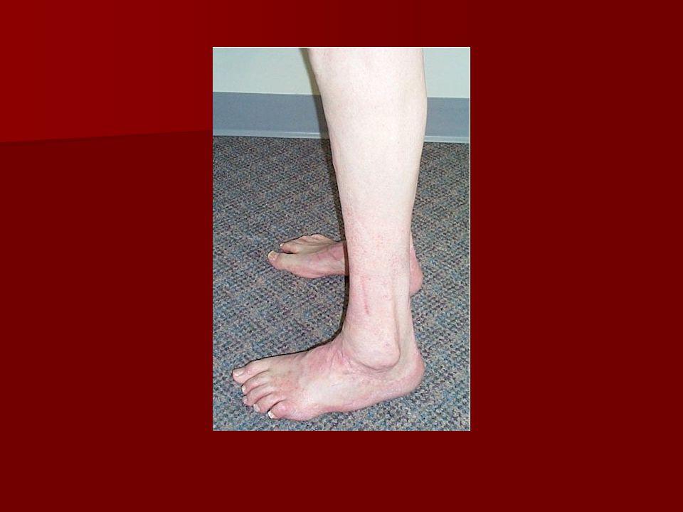EDX NCS,EMG,SSR,QST&SEP:normal NCS,EMG,SSR,QST&SEP:normal WITHDRAWAL TO PAIN:abnormal WITHDRAWAL TO PAIN:abnormal