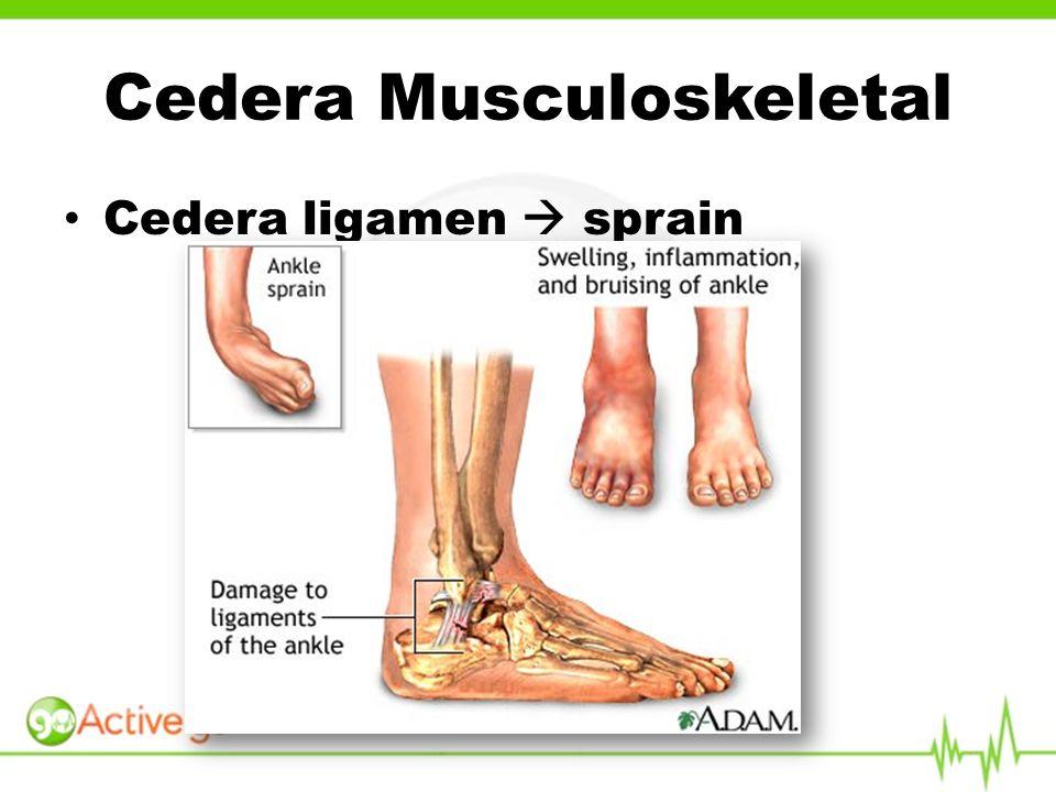 Cedera ligamen  sprain Cedera Musculoskeletal