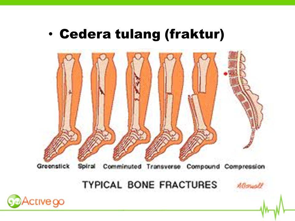 Cedera tulang (fraktur)