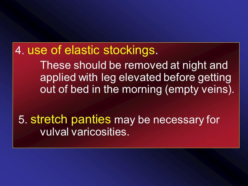 4. use of elastic stockings.
