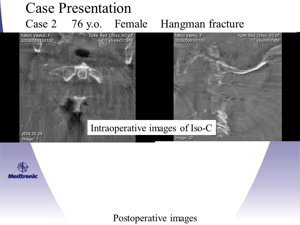 Case Presentation Case 2 76 y.o. Female Hangman fracture Intraoperative images of Iso-C Postoperative images