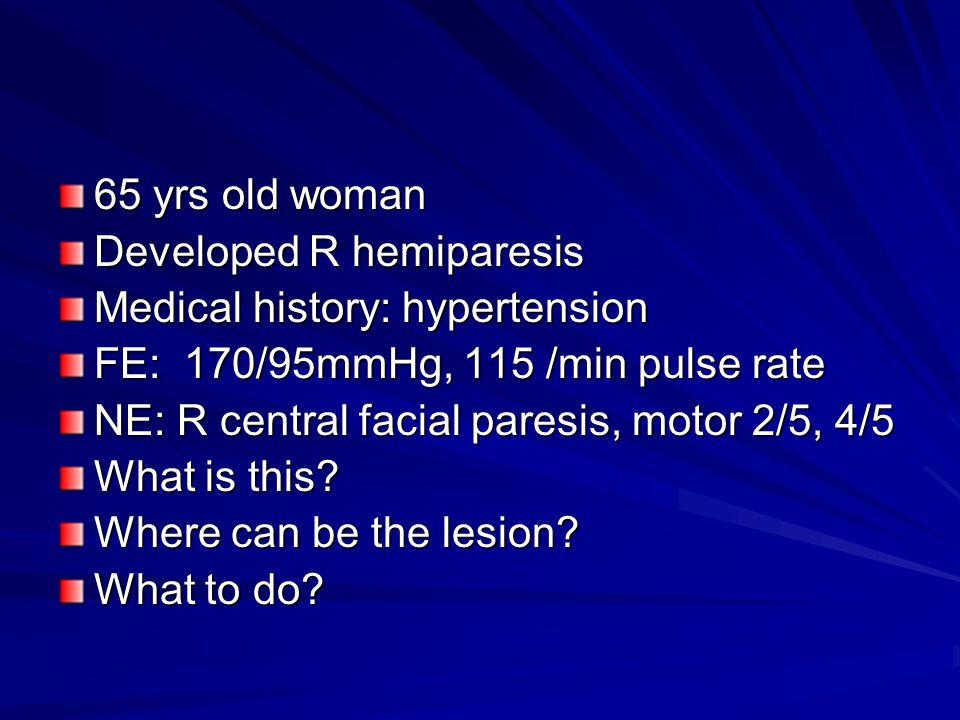 65 yrs old woman Developed R hemiparesis Medical history: hypertension FE: 170/95mmHg, 115 /min pulse rate NE: R central facial paresis, motor 2/5, 4/