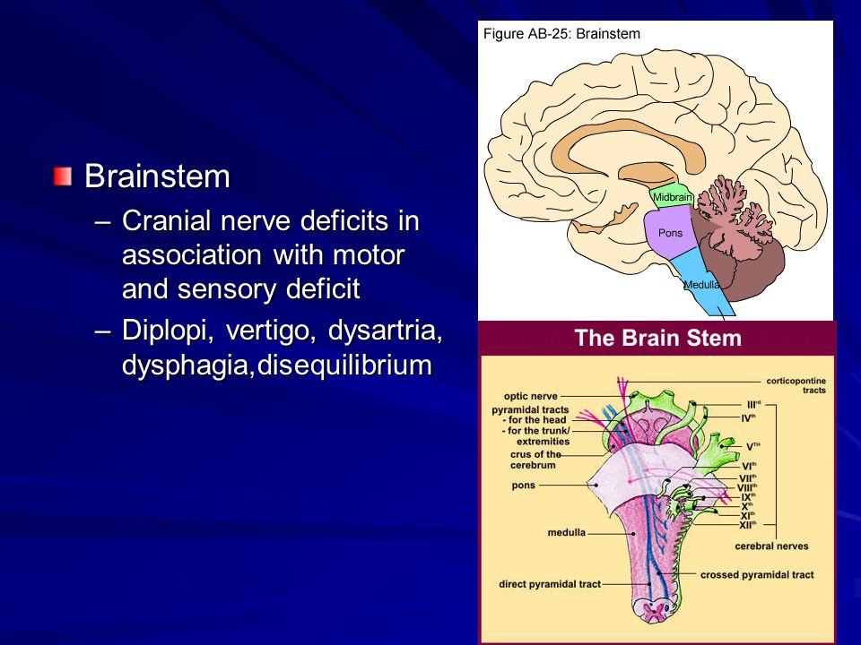 Brainstem –Cranial nerve deficits in association with motor and sensory deficit –Diplopi, vertigo, dysartria, dysphagia,disequilibrium