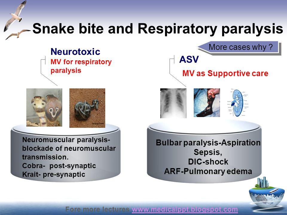 Fore more lectures www.medicalppt.blogspot.comwww.medicalppt.blogspot.com Snake bite and Respiratory paralysis Neuromuscular paralysis- blockade of ne