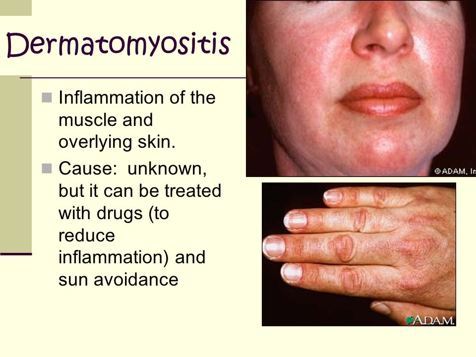 Dermatomyositis Inflammation of the muscle and overlying skin.
