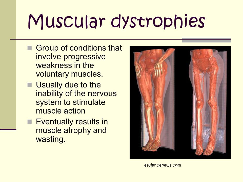 Muscular dystrophies Group of conditions that involve progressive weakness in the voluntary muscles.
