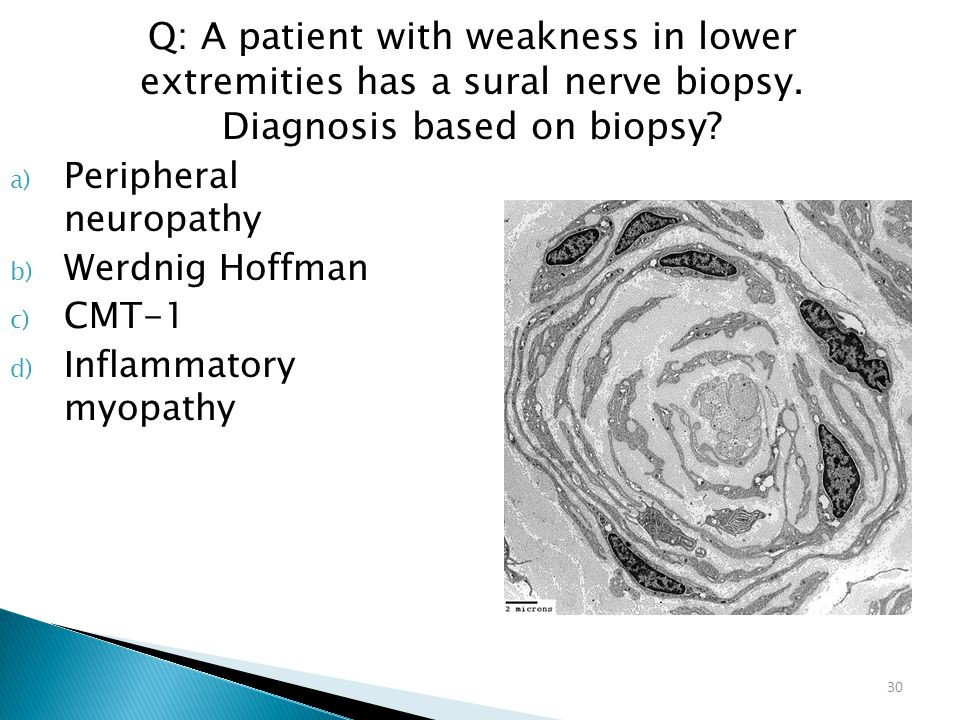 30 a) Peripheral neuropathy b) Werdnig Hoffman c) CMT-1 d) Inflammatory myopathy Q: A patient with weakness in lower extremities has a sural nerve bio