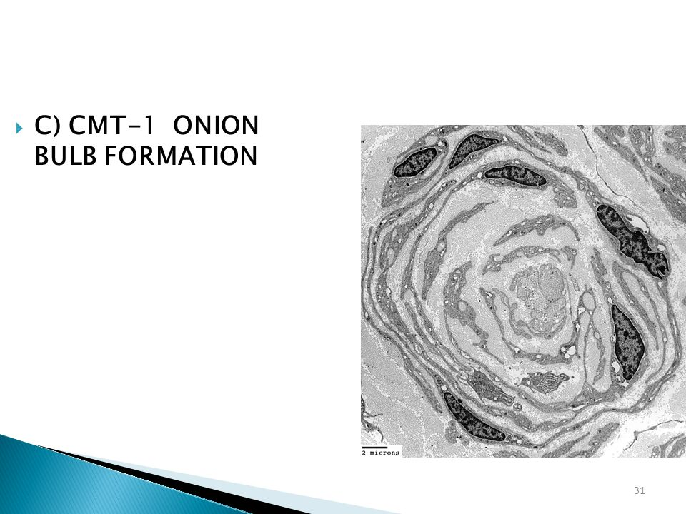 31  C) CMT-1 ONION BULB FORMATION
