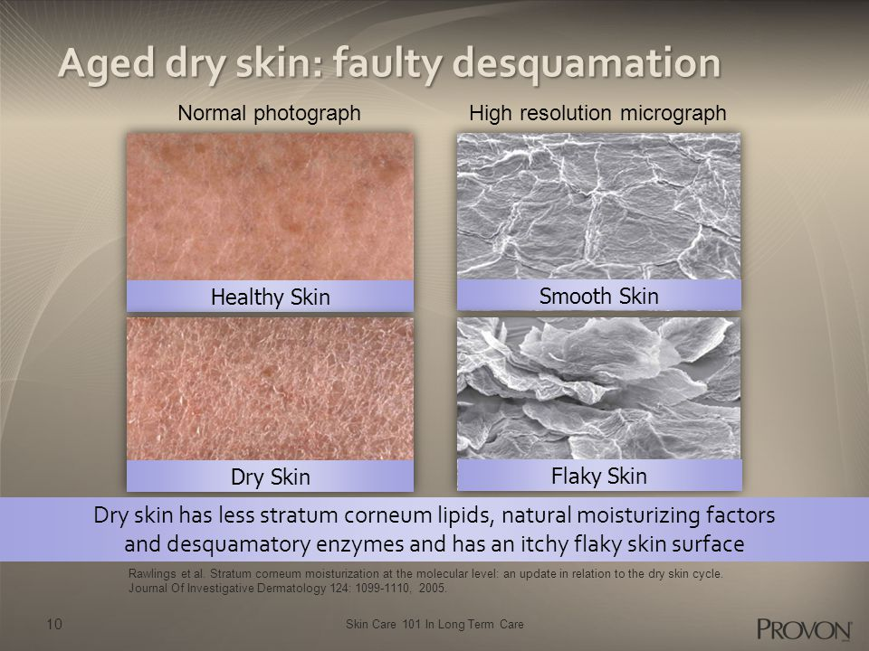 Skin Care 101 In Long Term Care Aged dry skin: faulty desquamation Normal photographHigh resolution micrograph Rawlings et al. Stratum corneum moistur