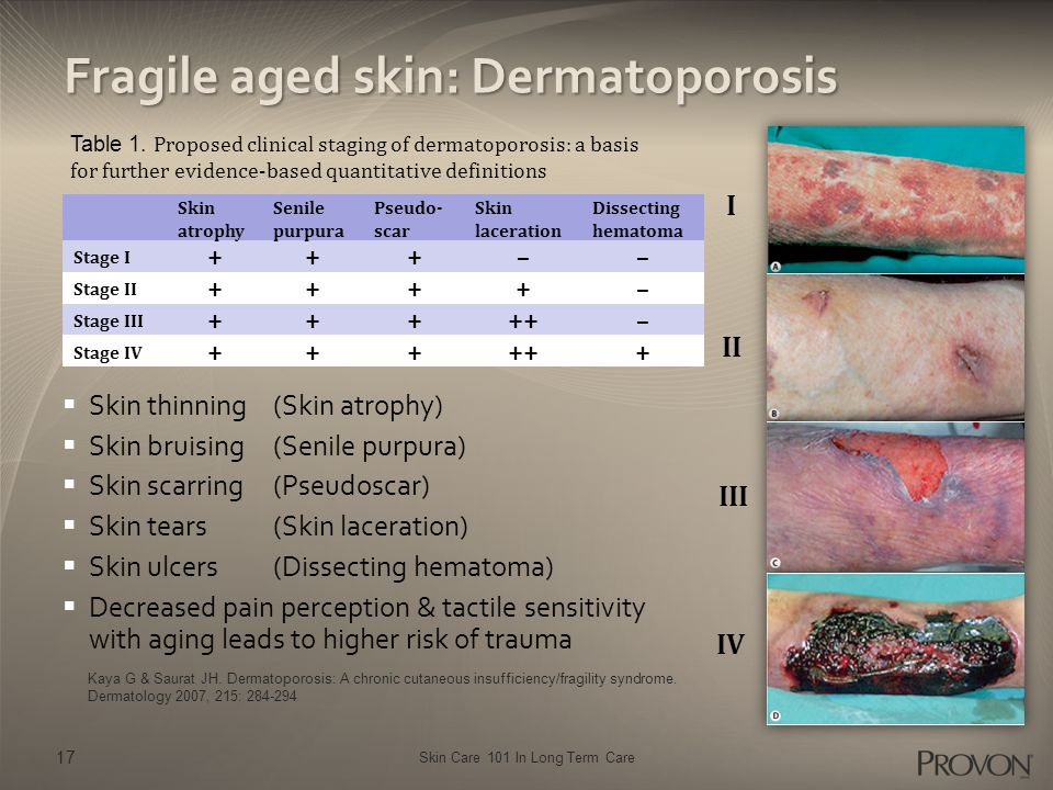 Skin Care 101 In Long Term Care Fragile aged skin: Dermatoporosis  Skin thinning (Skin atrophy)  Skin bruising (Senile purpura)  Skin scarring (Pse