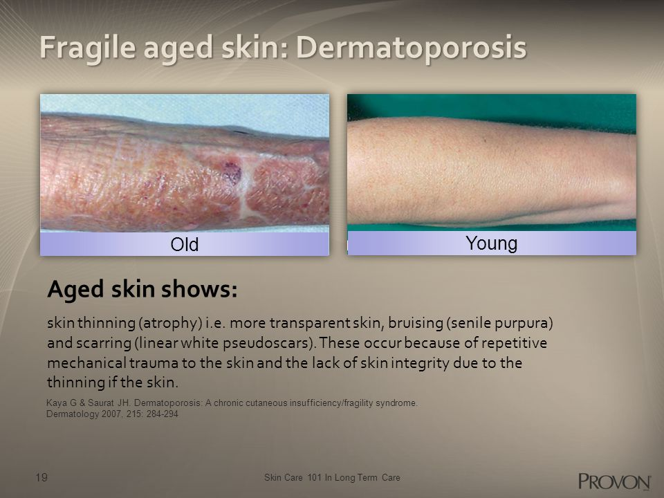 Skin Care 101 In Long Term Care Fragile aged skin: Dermatoporosis Kaya G & Saurat JH.
