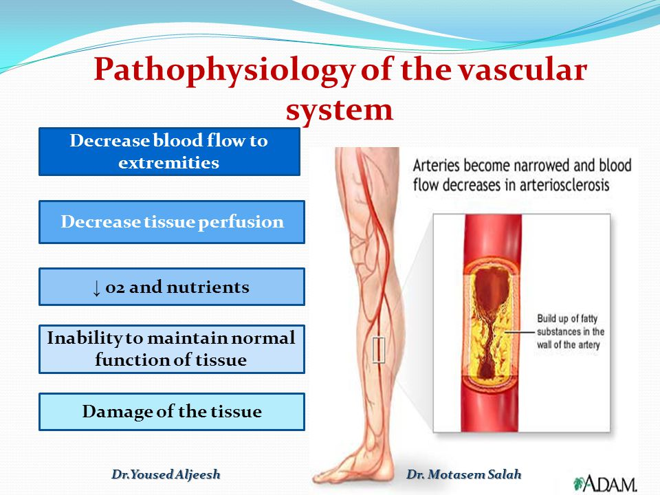Assessment of circulation insufficiency The most important point for the diagnosis of arterial disorders are: 1.