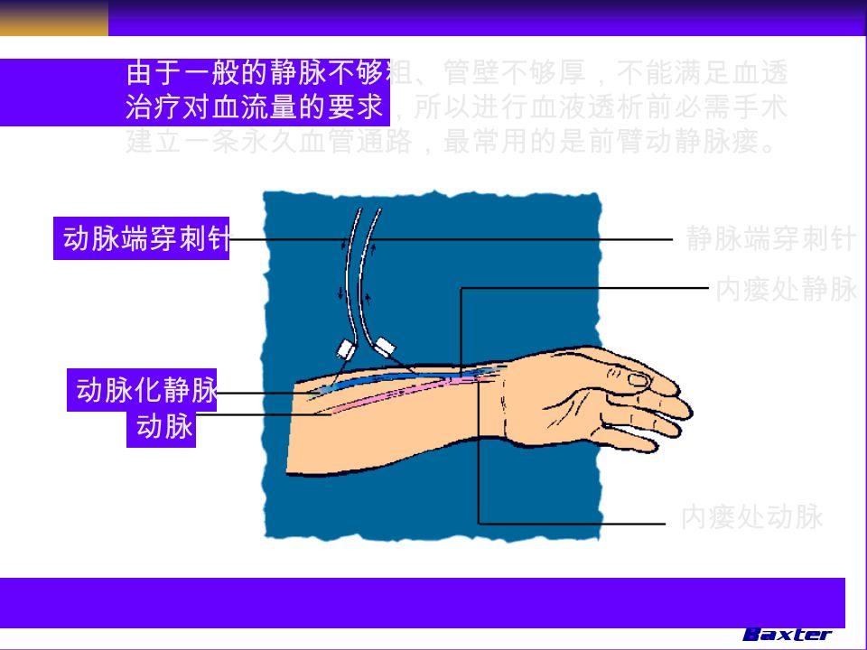 由于一般的静脉不够粗、管壁不够厚,不能满足血透 治疗对血流量的要求,所以进行血液透析前必需手术 建立一条永久血管通路,最常用的是前臂动静脉瘘。 静脉端穿刺针动脉端穿刺针 动脉化静脉 动脉 内瘘处静脉 内瘘处动脉