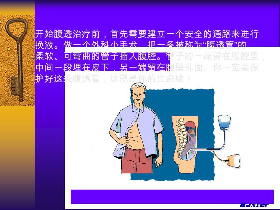 开始腹透治疗前,首先需要建立一个安全的通路来进行 换液。做一个外科小手术,把一条被称为 腹透管 的 柔软、可弯曲的管子插入腹腔。管子的一端留在腹腔里, 中间一段埋在皮下,另一端留在腹壁外面。你一定要保 护好这条腹透管,这就是你的生命线!