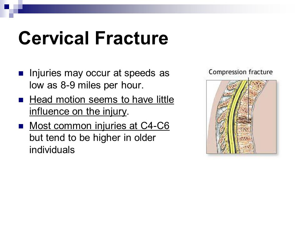 Cervical Fracture Injuries may occur at speeds as low as 8-9 miles per hour. Head motion seems to have little influence on the injury. Most common inj