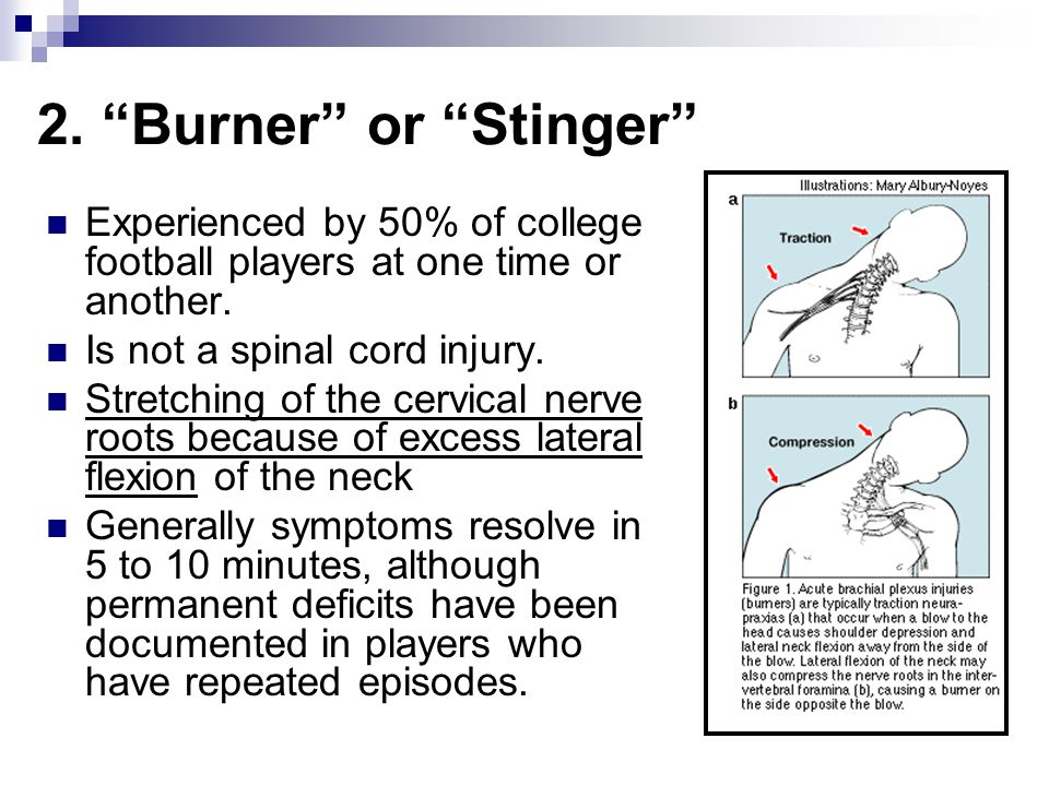 """2. """"Burner"""" or """"Stinger"""" Experienced by 50% of college football players at one time or another. Is not a spinal cord injury. Stretching of the cervica"""