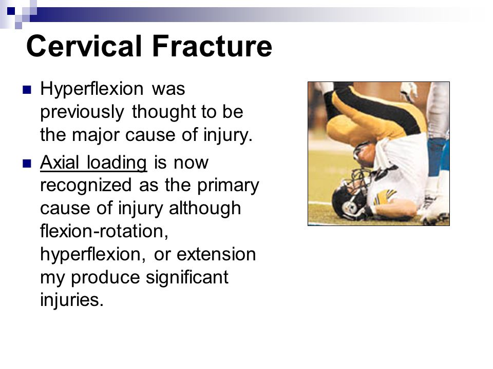 Cervical Fracture Hyperflexion was previously thought to be the major cause of injury. Axial loading is now recognized as the primary cause of injury