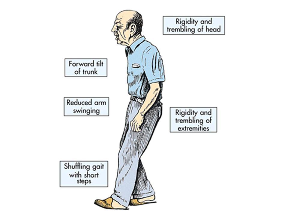 Parkinson's disease (PD) is a progressive neurodegenerative disorder.