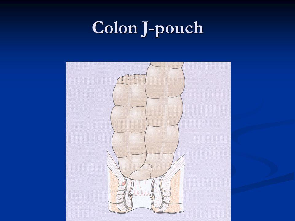Colon J-pouch