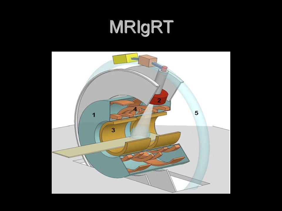MRIgRT