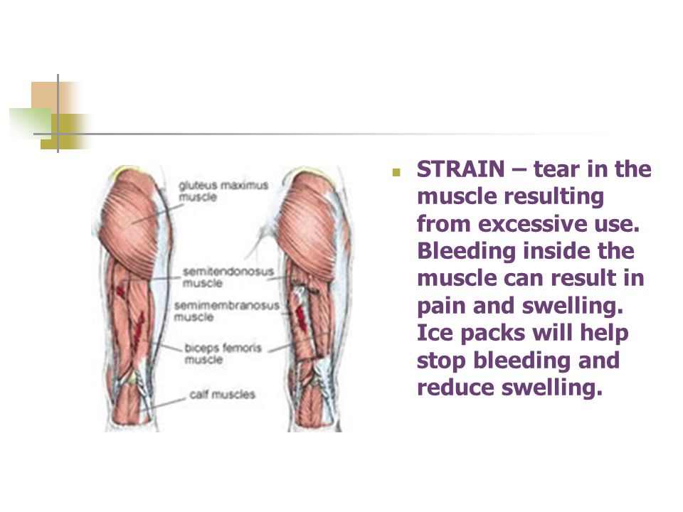 STRAIN – tear in the muscle resulting from excessive use.