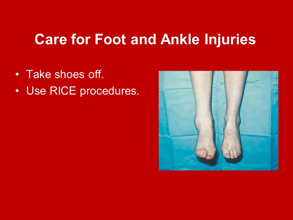 Care for Foot and Ankle Injuries Take shoes off. Use RICE procedures.